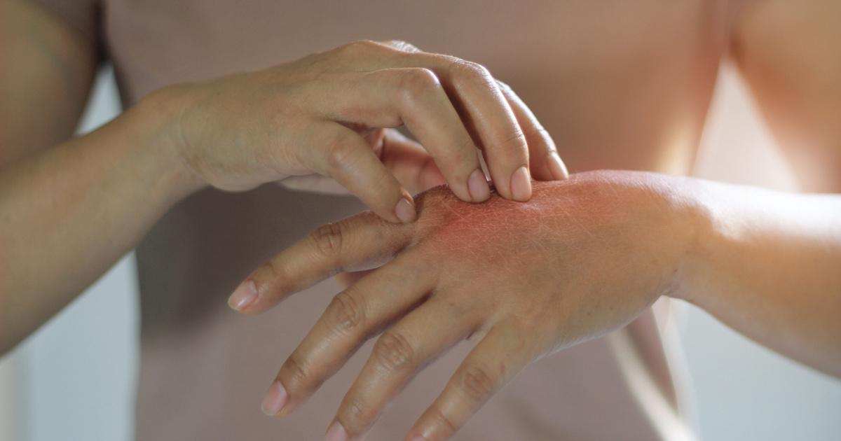 Kezelni a pikkelysömört – vrindex.hu - Hogyan kell kezelni a pikkelysömör fején a kátrányt
