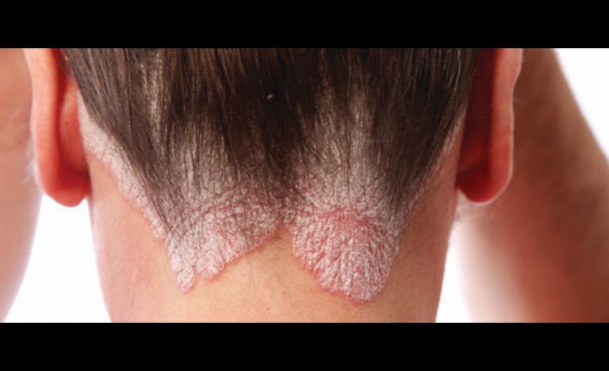 vörös foltok az arcon és a fejen fotó pikkelysömör kezelése bulgaria árakon