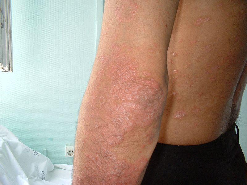 tanácsot adjon egy homeopatának a pikkelysömör kezelésében glutoxim pikkelysömör kezelésére