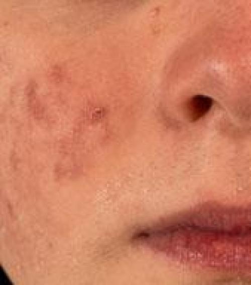 típusú vörös foltok az arcon egy fotóval