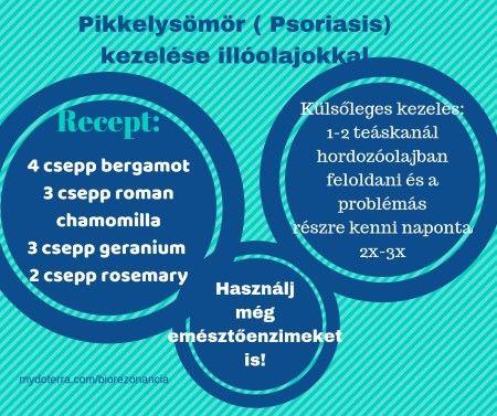 udalyanchi pikkelysömör kezelése diagnózis pikkelysömör kezelése