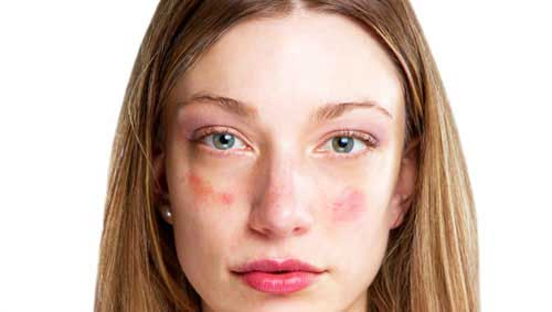 vörös allergén foltok a bőrön pitypang pikkelysömör kezelésében