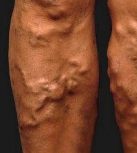 vörös erek a lábakon piros pikkelyes folt az alsó lábszáron