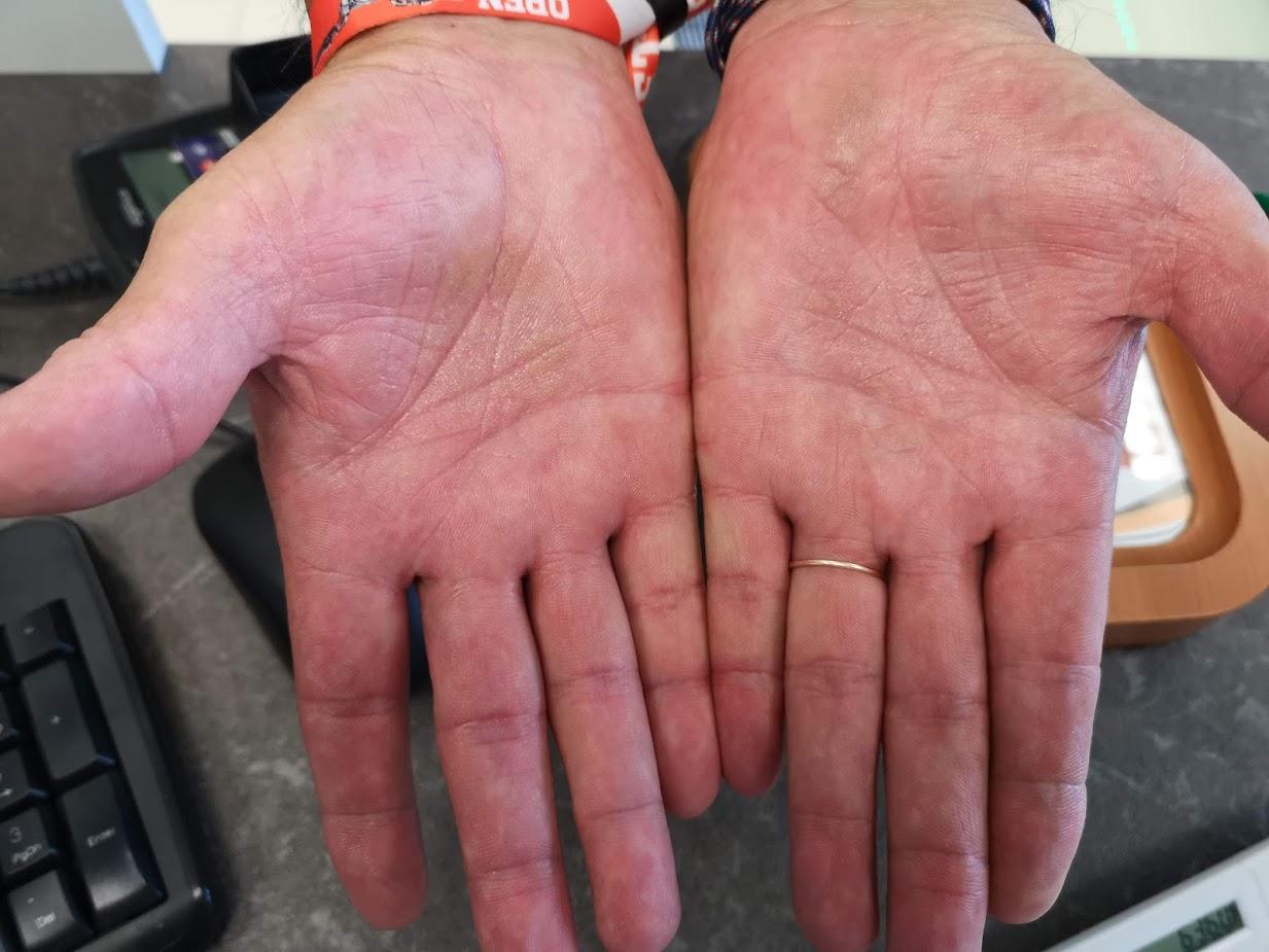 a kezén vörös folt hámlik és viszket)