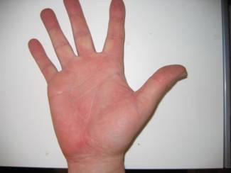 Purpura: lila bevérzések a bőrön - HáziPatika Piros és lila folt a kezén mi ez