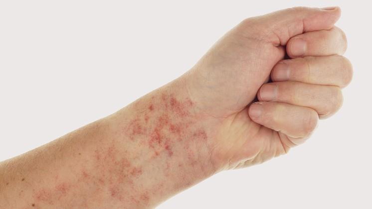 vörös foltok a bőrön fotó és leírás pikkelysömör orvosság kartalin