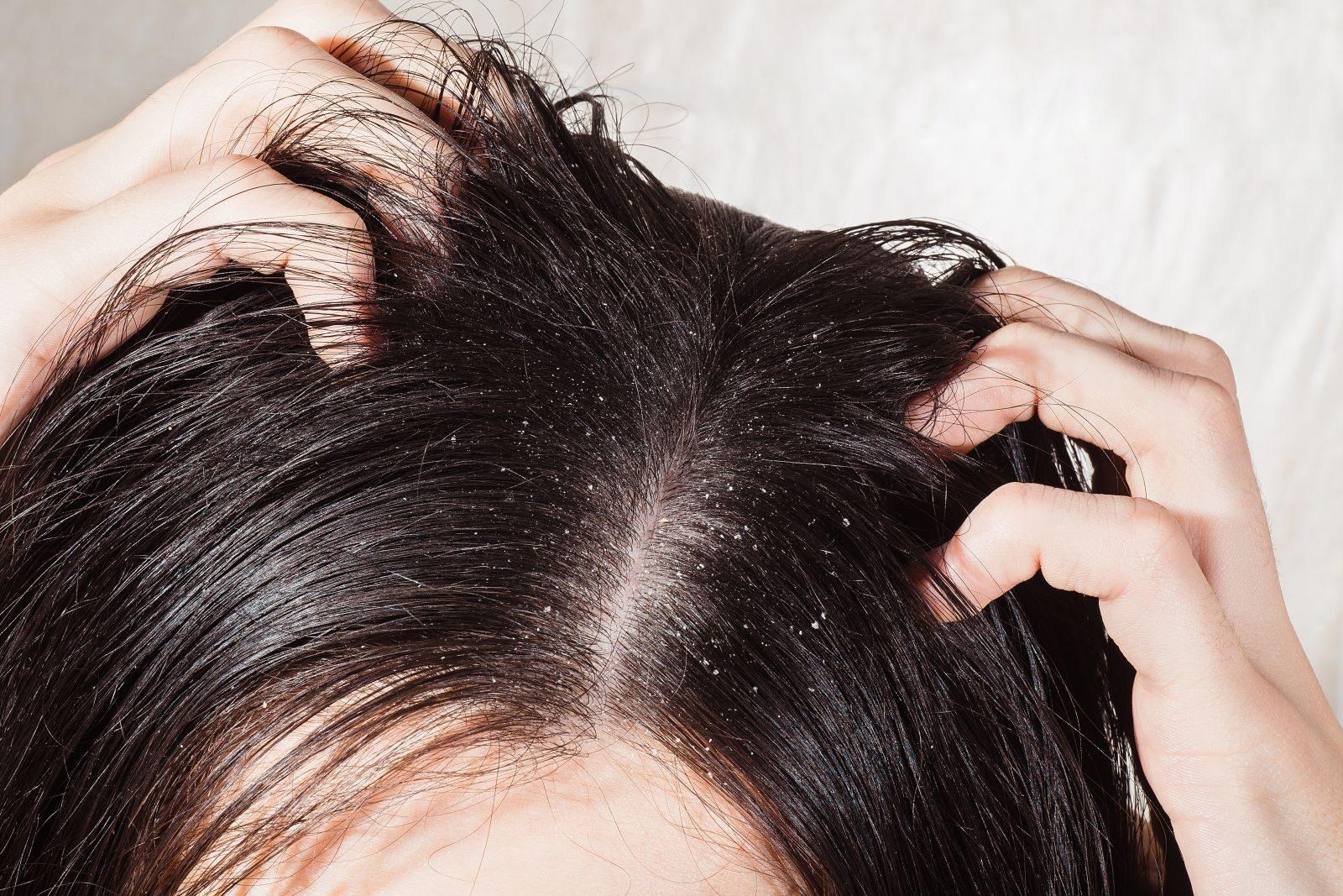 vörös foltok a fej alatt a haj alatt és viszket pikkelysömör kezelésére babér