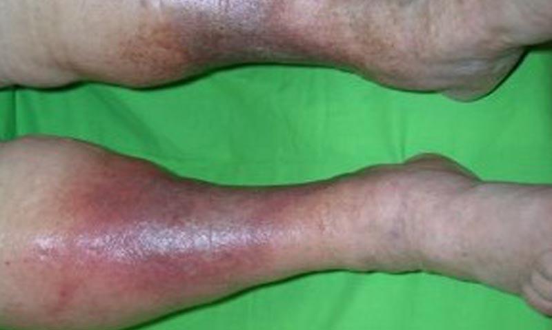 vörös foltok a lábakon vénás betegség vörösesbarna foltok a kezeken