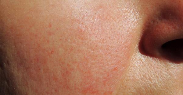 vörös foltok az arcon bőrrákkal foltok jelentek meg a gyomorban vörös