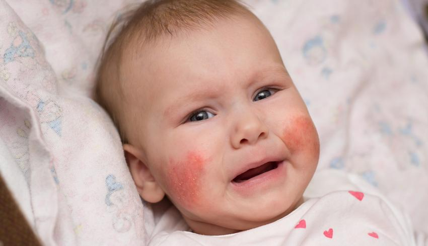 vörös foltok az arcon és a testen izgalommal
