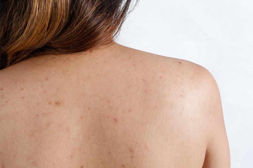 vörös foltok kezelése a háton