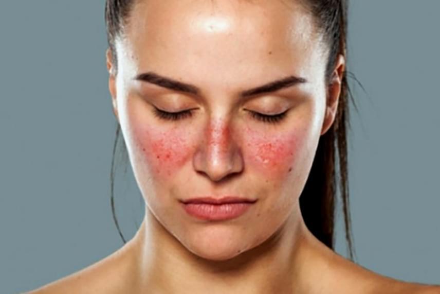 vörös és lila foltok az arcon kiütések a kezeken vörös foltok formájában, viszketéssel felnőtteknél