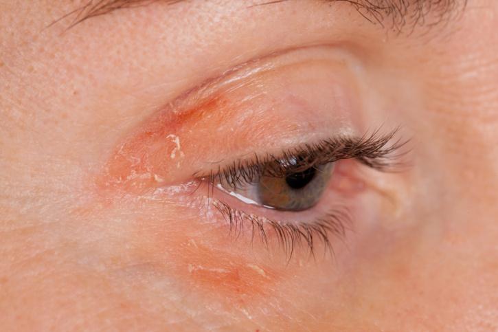vörös szemek és foltok az arcon hogyan lehet gyógyítani az ideg pikkelysömörét