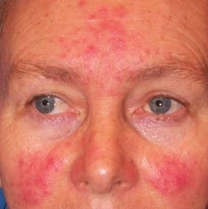 krém irritációra és vörös foltokra az arcon vörös foltok az arcon a drogoktól