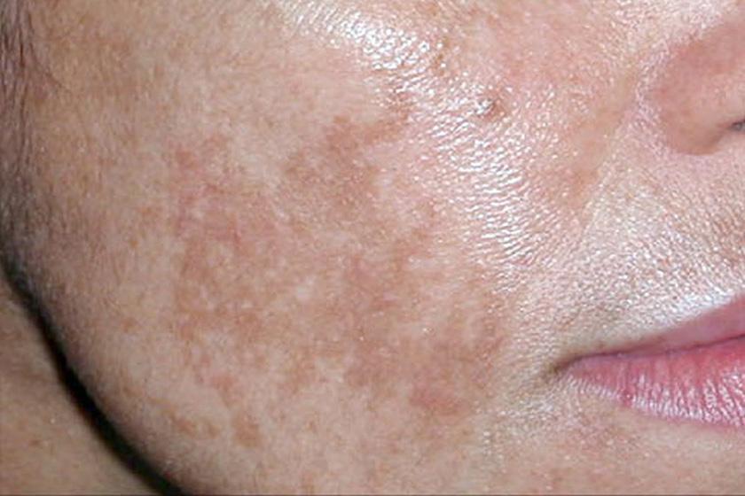 Így előzheti meg a májfolt és öregségi folt kialakulását - EgészségKalauz