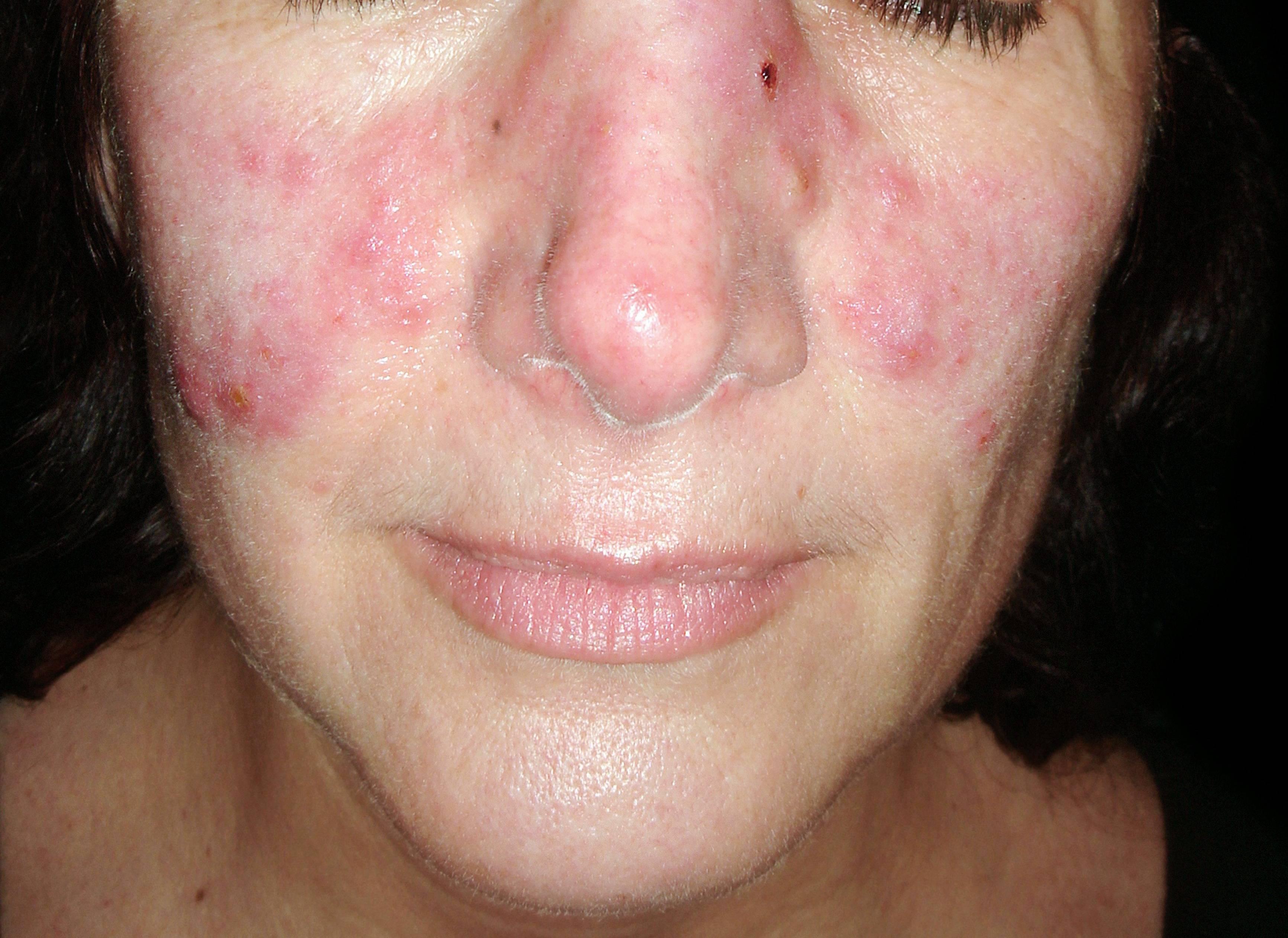 reggel arc vörös foltokkal pikkelysömörrel jobb kezelni
