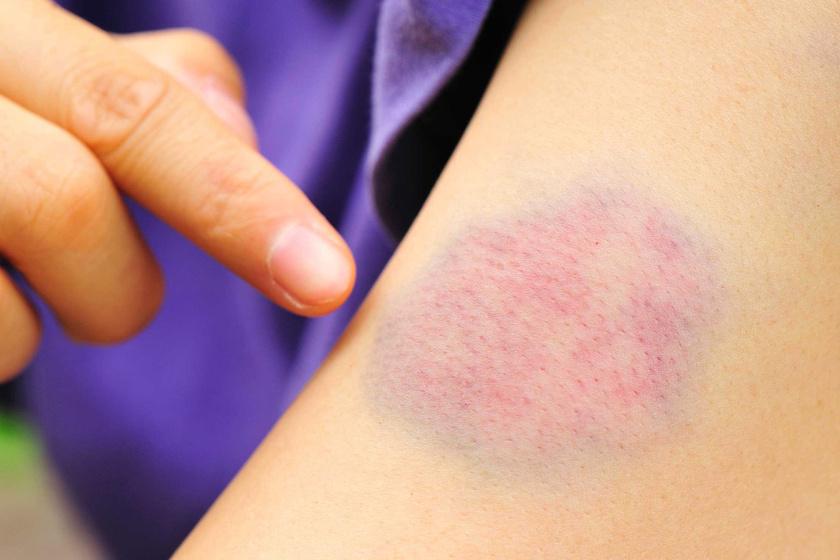 apró piros foltok a has bőrén új kezelés a pikkelysömörhöz
