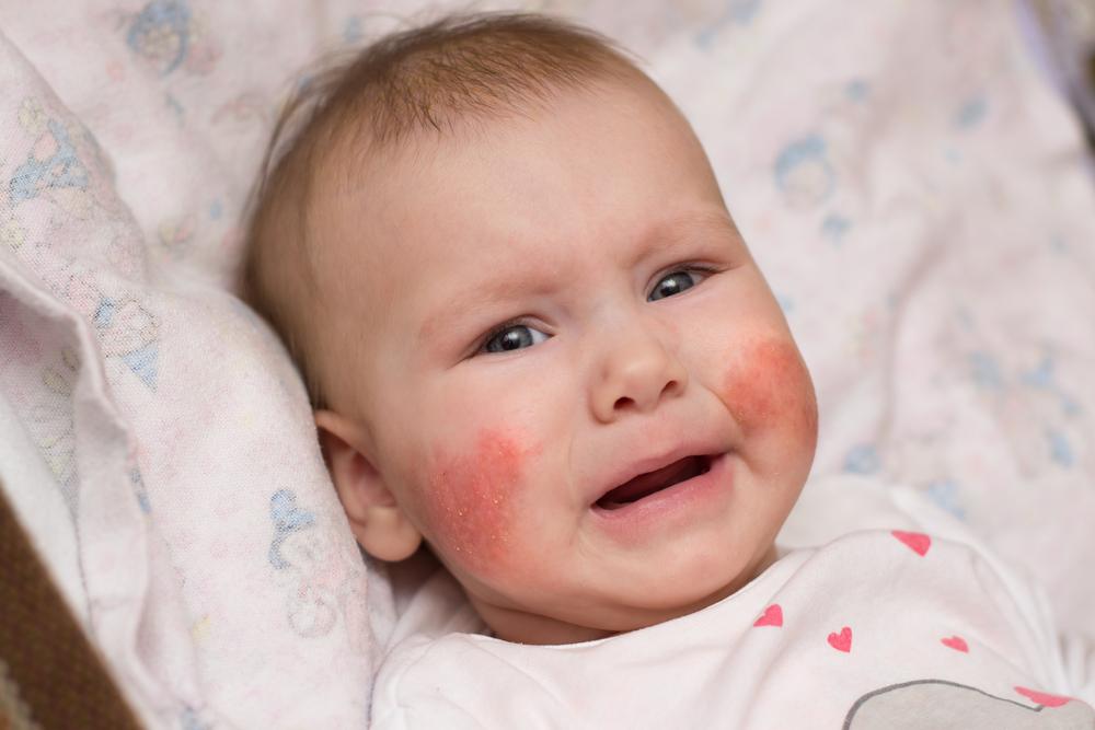 nagy vörös foltok az arcon a bőrön)