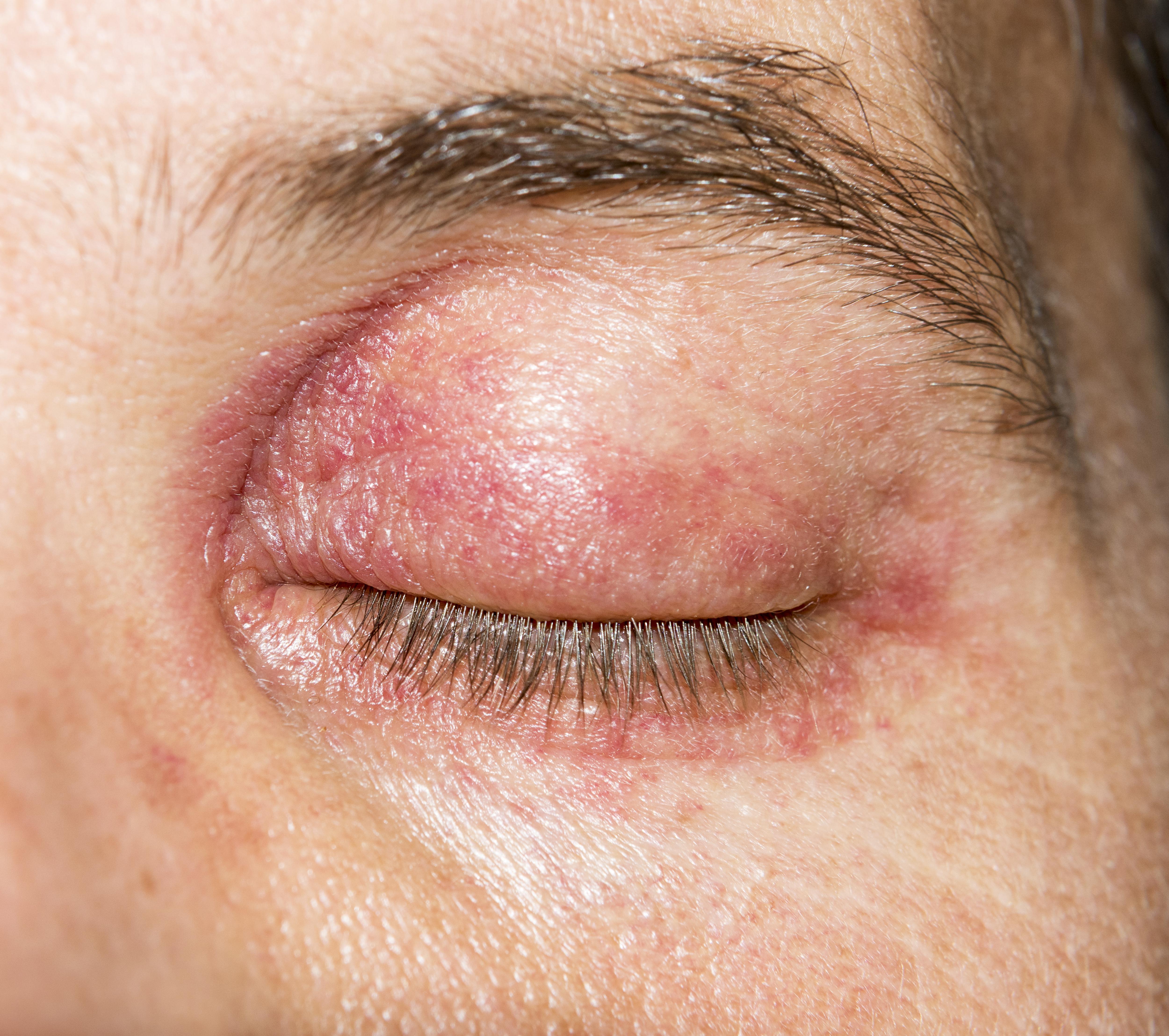 Vörös foltok a bőrön népi gyógymódok, Hámló bőr visszér