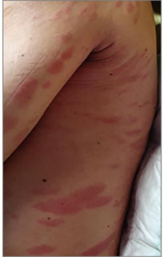 vörös viszkető foltok a láb bőrén)