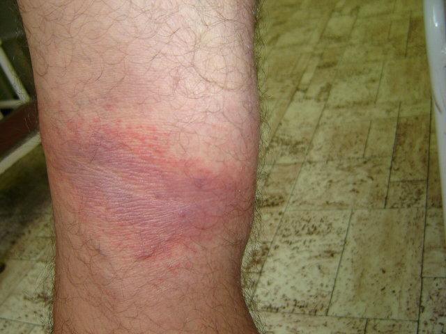 a lábán megjelent vörös folt nem fáj)