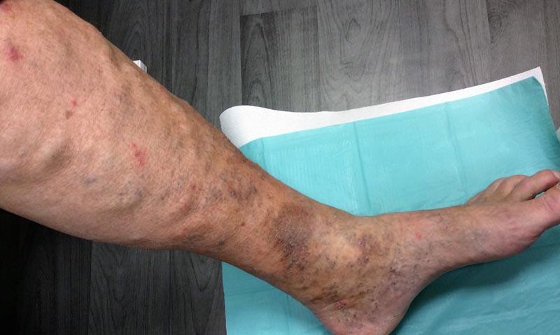 a lábszár foltja vörös és viszkető