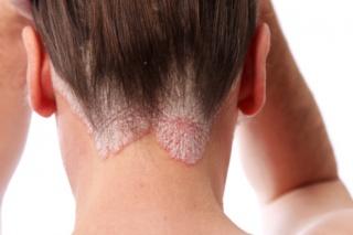 adagolók a pikkelysömör kezelésére bőrkiütések vörös foltok formájában
