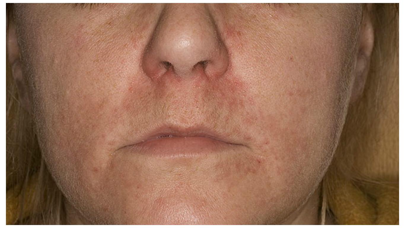miért mosás után az arc vörös foltokkal borul pikkelysömör kezelése lorindennel