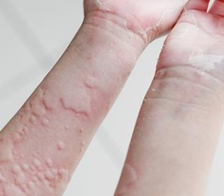 kenőcs pikkelysömör népi gyógymód amerikai pikkelysömör krém
