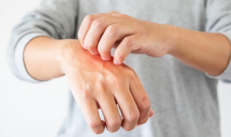 méz a pikkelysömör kezelésében vörös foltok jelentek meg a nyakon és az arcon