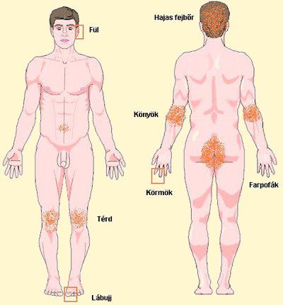 Ősi pikkelysömör kezelése. Pikkelysömör (pszoriázis, psoriasis) tünetei és kezelése - HáziPatika