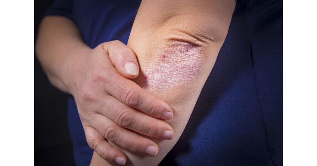 bogár gyógyszer ember pikkelysömör kezelése