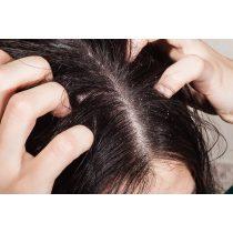 UVB-fényterápia Pikkelysömör a fejen s a füleken hogyan kell kezelni