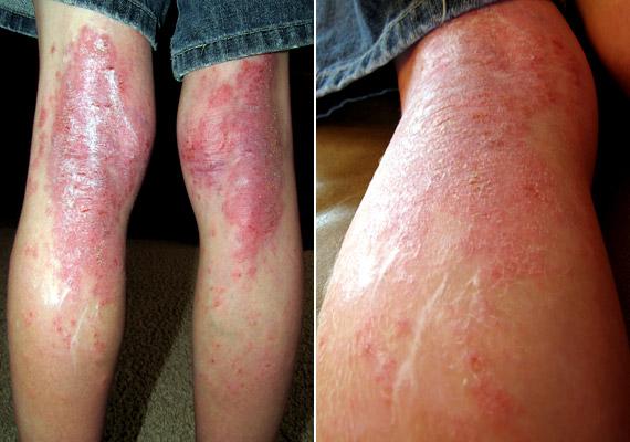 vörös foltok az oknál a férfiaknál edzés után a lábakon vörös foltok