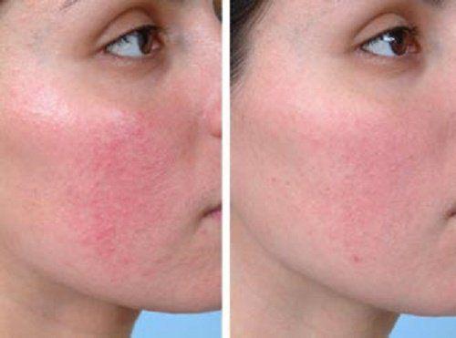 Vörös foltok az arcon a hidegtől mit kell tenni - Aromaterápiás pikkelysömör kezelése