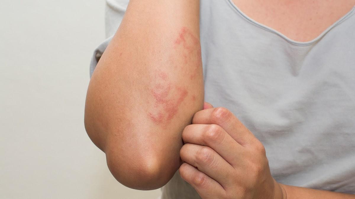 vörös foltok jelentek meg a láb bőrén)
