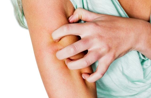 keratitis pikkelysömör kezelésével)