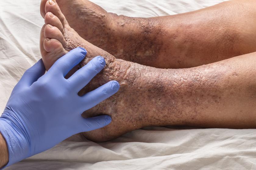 pikkelysömör kezelése a fejen és az arcon vörös foltok a lábakon és a hámló bőrön