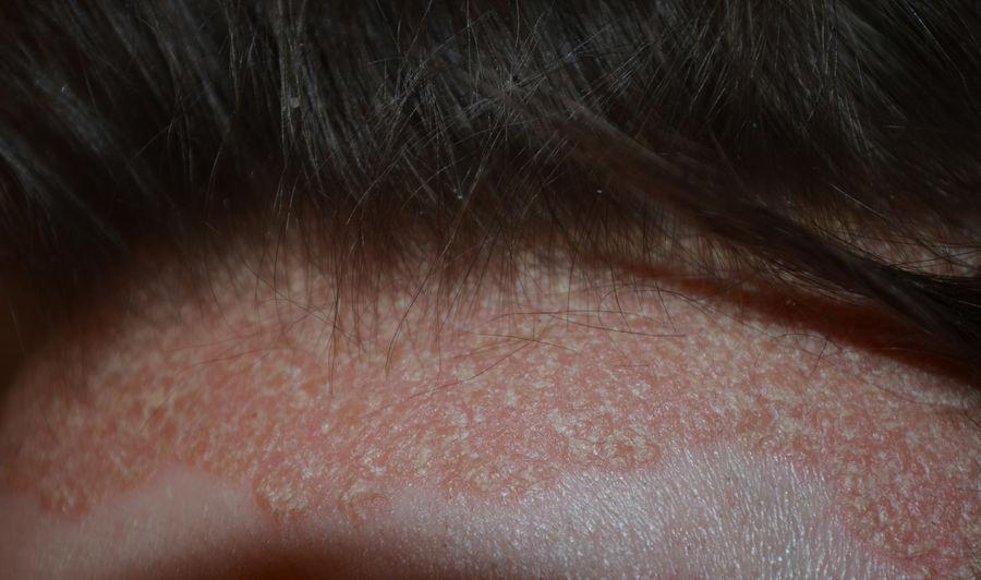 hogyan lehet eltávolítani az arcon álló vörös álló foltokat a test viszket, vörös foltok jelennek meg, majd eltűnnek