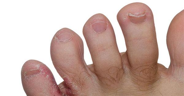 apró piros foltok a lábujjakon