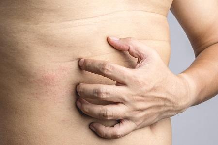 hóna alatt megjelentek a vörös foltok kezelése