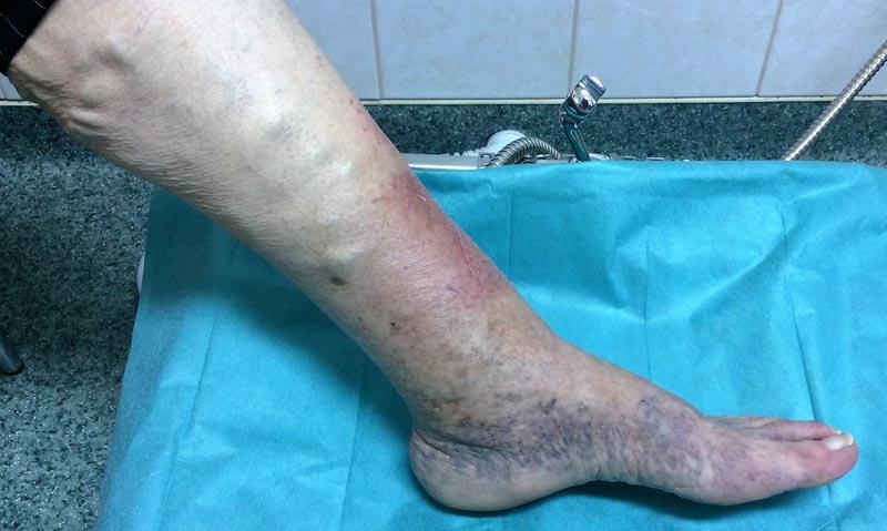 A varikózis tünetei a lábakon. A lábszárat érintő varikózis tünetei (varikózis) - Struktúra