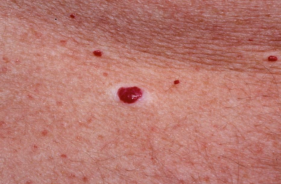 a bőrön egy piros peremű folt nem vörös foltok hólyagokkal a testen viszketnek