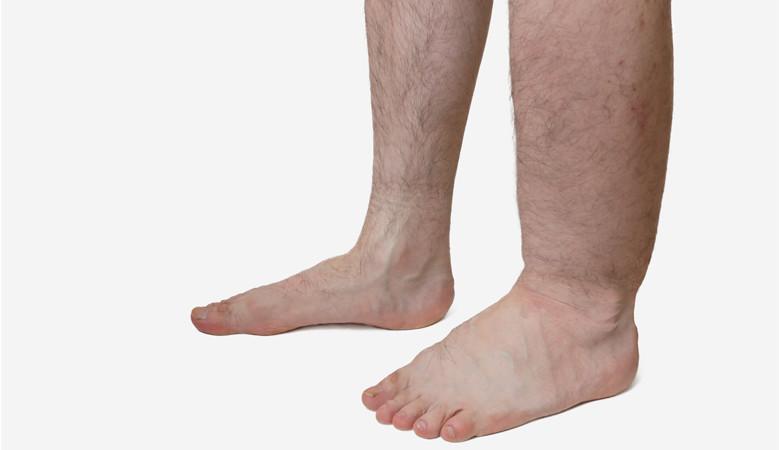 bőrbetegségek pikkelysömör kezelés fotó otthoni pikkelysmr kezelsre