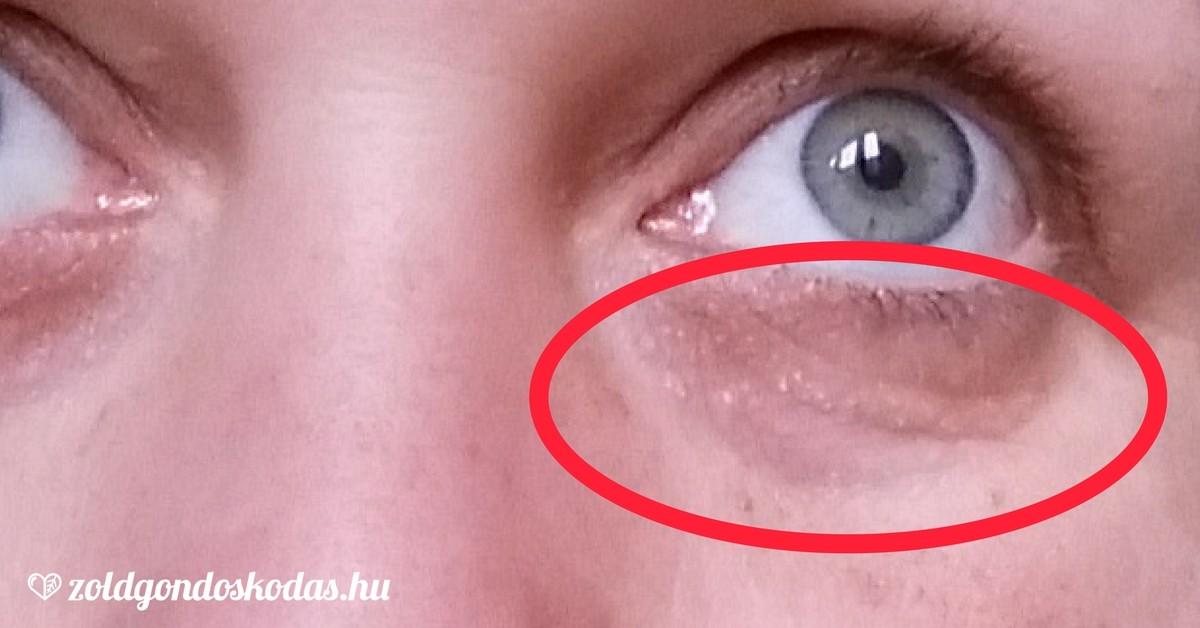 Szemek szemek prosztatitis