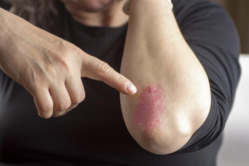kő gyógyítja a pikkelysömör vörös foltok a bőrön öregségi foltok