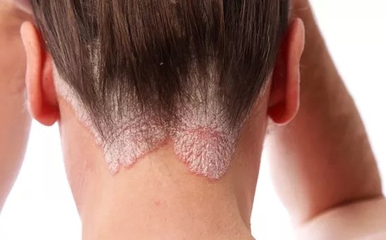 A pikkelysömör házi kezelése | TermészetGyógyász Magazin, Pikkelysömör a fejbőrön népi gyógymódok