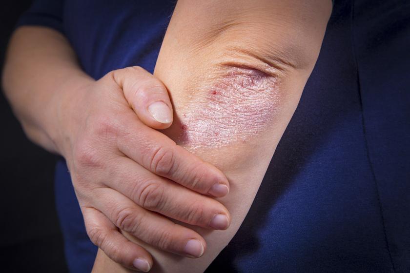 milyen kenőcs a pikkelysömör kezelésére a fejn apró vörös foltok a bőrön okozzák