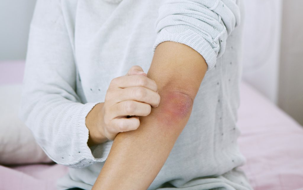reamberin pikkelysömör kezelése láz és vörös foltok a lábakon