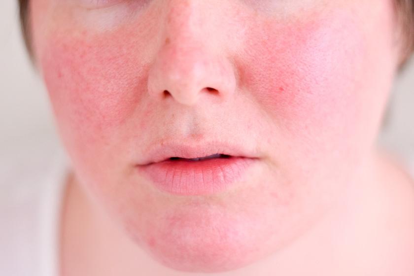 reggel arc vörös foltokkal pikkelysömör kezelése bulgaria árakon